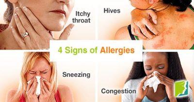 Common Allergy Symptoms