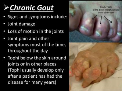 Treatment of Chronic Gout
