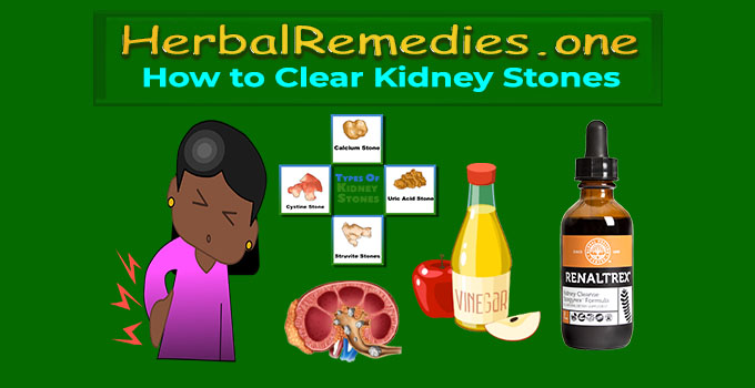 how to release kidney stones