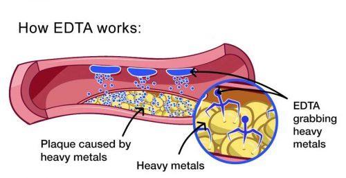 EDTA Chelation Therapy